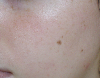 shiseido-peau-apres-1-mois_zoom.jpg